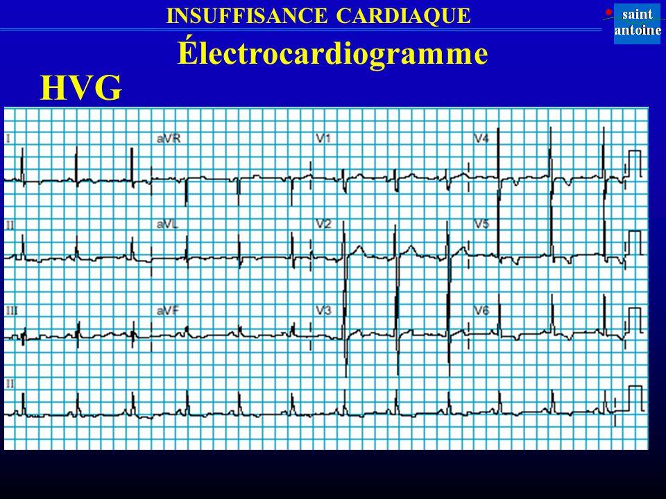 INSUFFISANCE CARDIAQUE HVG Électrocardiogramme
