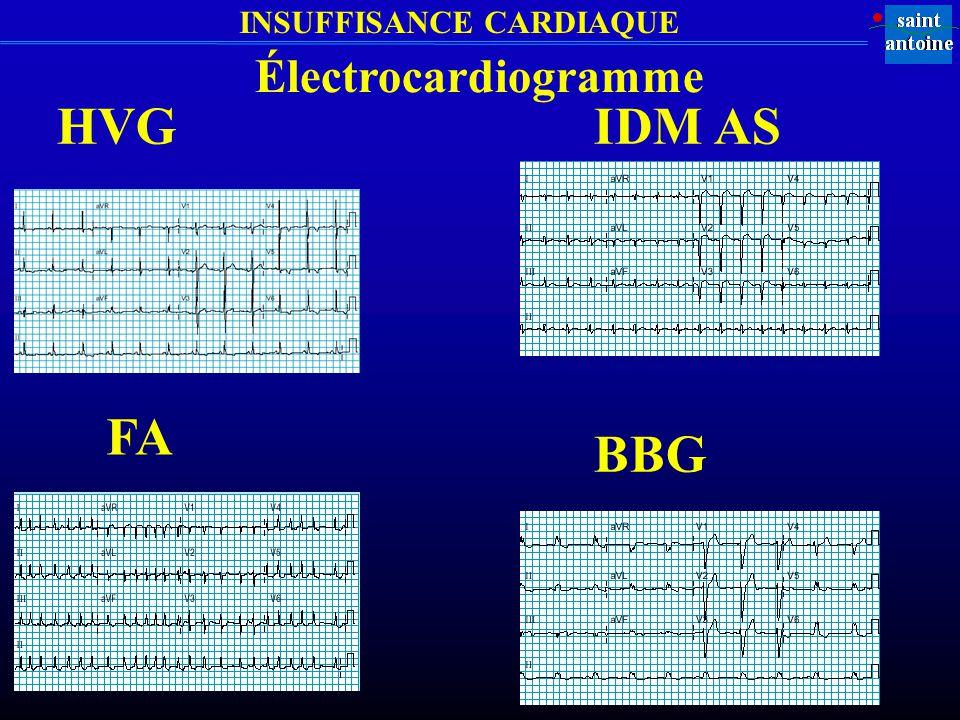 INSUFFISANCE CARDIAQUE HVG FA Électrocardiogramme IDM AS BBG