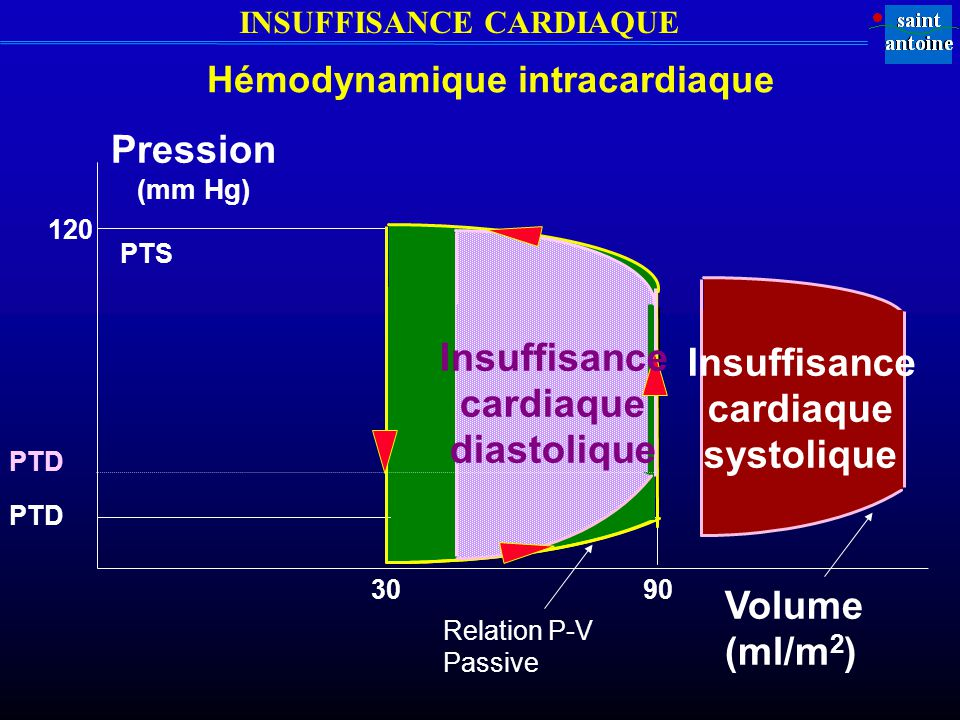 INSUFFISANCE CARDIAQUE PTS Volume (ml/m 2 ) Pression (mm Hg) 3090 120 Insuffisance cardiaque systolique PTD Insuffisance cardiaque diastolique Hémodyn