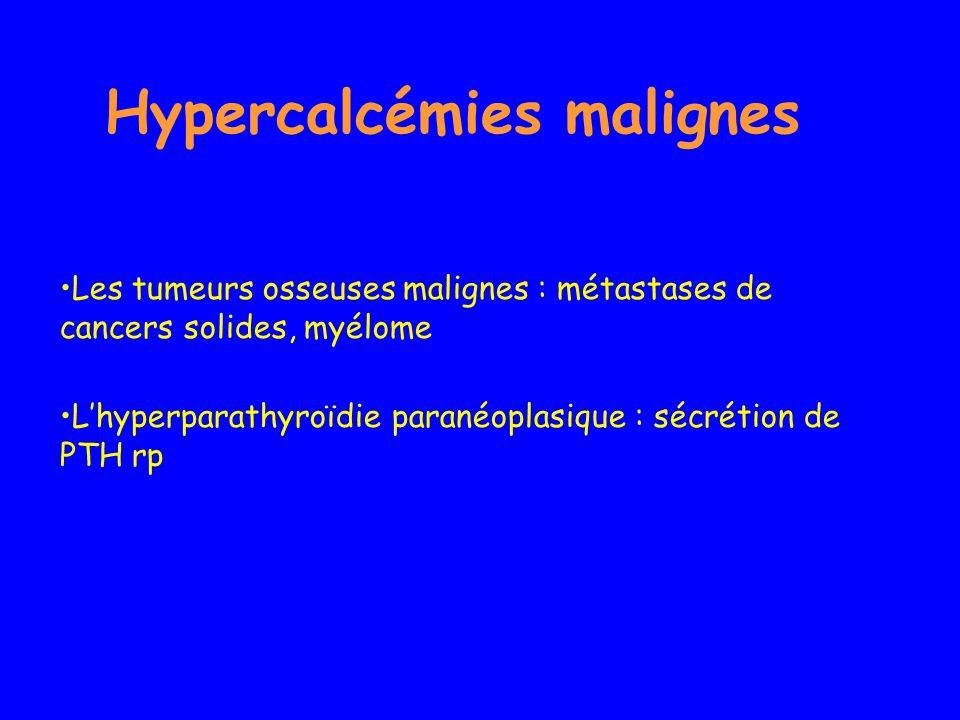 Hypercalcémies malignes Les tumeurs osseuses malignes : métastases de cancers solides, myélome Lhyperparathyroïdie paranéoplasique : sécrétion de PTH