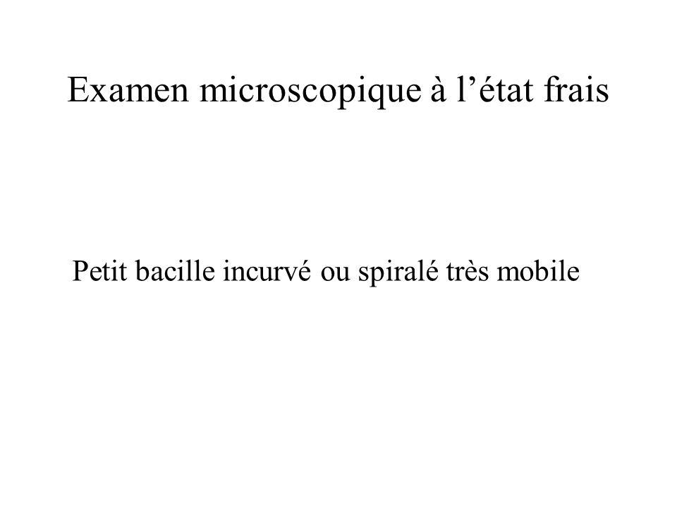 Examen microscopique à létat frais Petit bacille incurvé ou spiralé très mobile