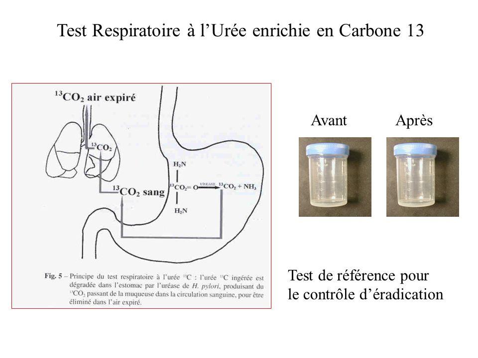 Test Respiratoire à lUrée enrichie en Carbone 13 Test de référence pour le contrôle déradication Avant Après
