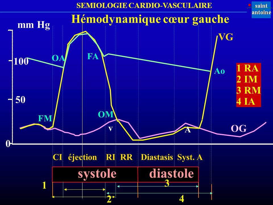 SEMIOLOGIE CARDIO-VASCULAIRE Mécanisme Morphologie Chronologie Timbre Siège Irradiat ion Type SYSTOLE Régurgitation rectangulaire holo (couvre B2) doux en apex axillaire IM, IMF ou méso-télé jet de (PVM) vapeur xiphoïde IT, ITF méso-card rayon roue CIV Obstacle à losangique méso râpeux 2 e EICD carotide RA léjection 2 e EICD RP DIASTOLE Régurgitation décroissant proto-méso, aspiratif 2 e EICD bord sternum, IA endapex accroché à B2 2 e EICD bord G sternum IP Obstruction renforcement holo roulem ent apex axillaire RM proto et télé apex Flint xiphoïde RT CONTINU Communication renforcement continu tunnellaire sous bord canal artério-veineuse télé-systolique clavicul.