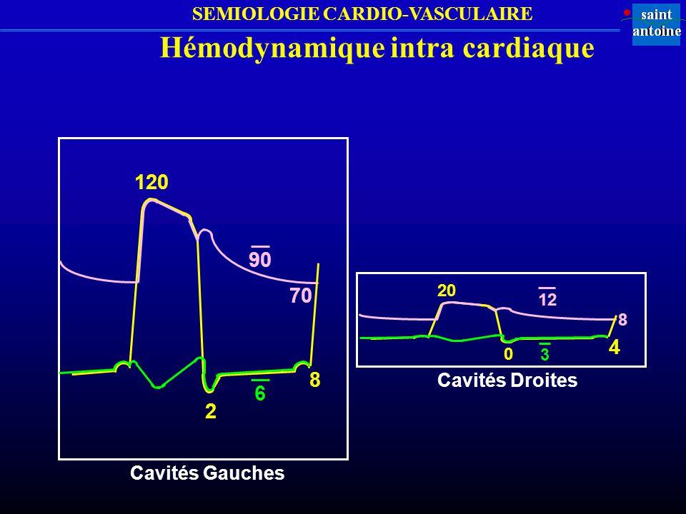 SEMIOLOGIE CARDIO-VASCULAIRE Modifications CMORA IM PVM Valsalva ou Position debout = Épreuve d effort mineure = Couché, jambes élevées = = Exercice physique = Nitrite d amyle Isoprotérénol (Isuprel ) Souffles