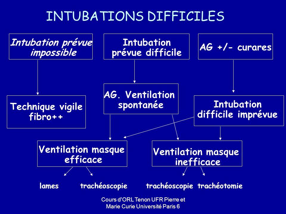 Cours d ORL Tenon UFR Pierre et Marie Curie Université Paris 6 Intubation prévue impossible Intubation prévue difficile AG +/- curares Technique vigile fibro++ AG.