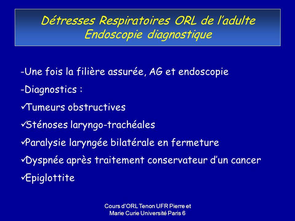 Cours d ORL Tenon UFR Pierre et Marie Curie Université Paris 6 Détresses Respiratoires ORL de ladulte Endoscopie diagnostique -Une fois la filière assurée, AG et endoscopie -Diagnostics : Tumeurs obstructives Sténoses laryngo-trachéales Paralysie laryngée bilatérale en fermeture Dyspnée après traitement conservateur dun cancer Epiglottite