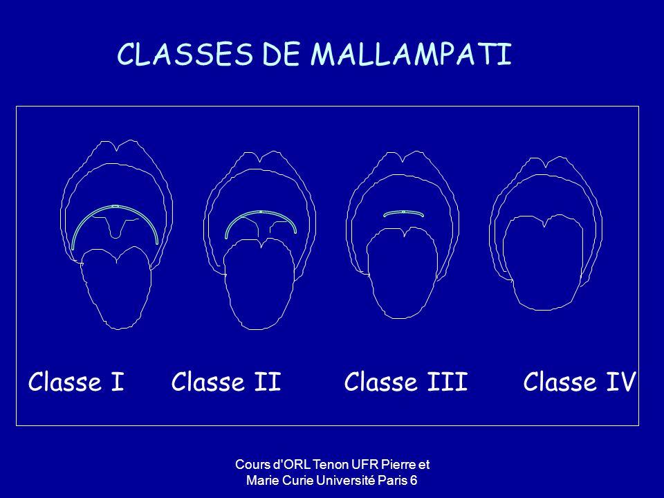 Cours d'ORL Tenon UFR Pierre et Marie Curie Université Paris 6 CLASSES DE MALLAMPATI Classe I Classe II Classe III Classe IV