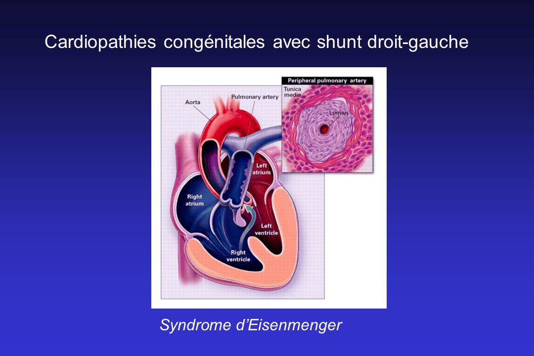 Cardiopathies congénitales avec shunt droit-gauche Syndrome dEisenmenger