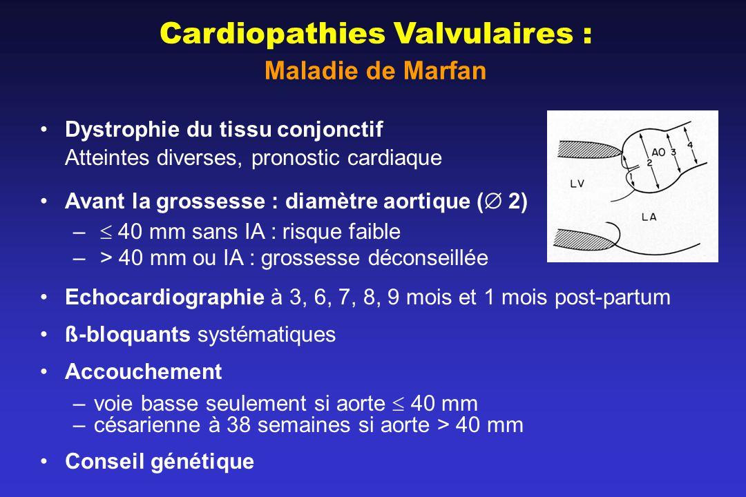 Cardiopathies Valvulaires : Maladie de Marfan Dystrophie du tissu conjonctif Atteintes diverses, pronostic cardiaque Avant la grossesse : diamètre aortique ( 2) – 40 mm sans IA : risque faible – > 40 mm ou IA : grossesse déconseillée Echocardiographie à 3, 6, 7, 8, 9 mois et 1 mois post-partum ß-bloquants systématiques Accouchement –voie basse seulement si aorte 40 mm –césarienne à 38 semaines si aorte > 40 mm Conseil génétique