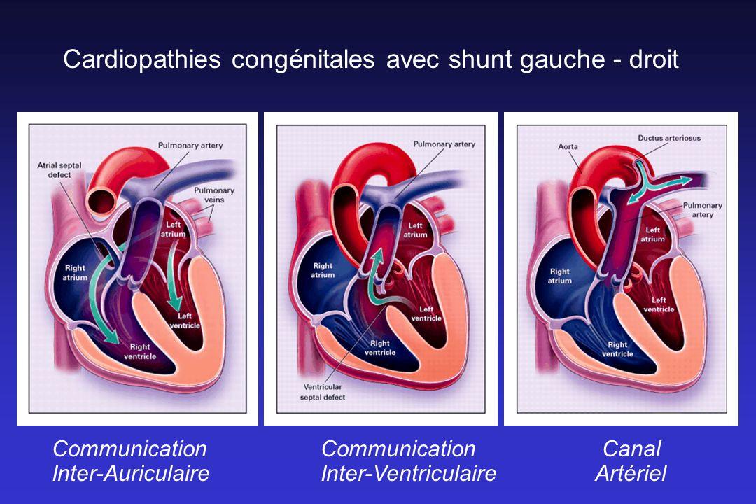 Cardiopathies congénitales avec shunt gauche - droit CommunicationCommunication Canal Inter-AuriculaireInter-Ventriculaire Artériel