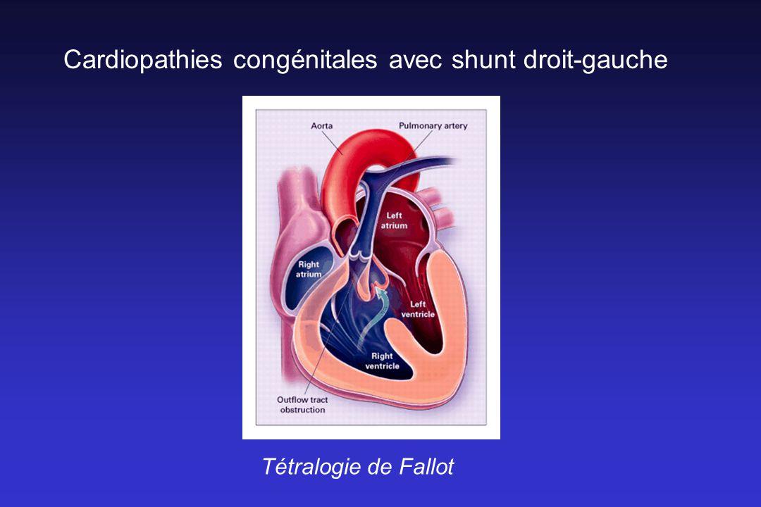 Cardiopathies congénitales avec shunt droit-gauche Tétralogie de Fallot