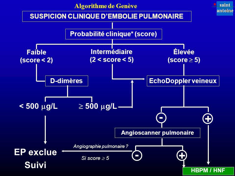 Probabilité clinique* (score) Faible (score < 2) Intermédiaire (2 < score < 5) Élevée (score 5) D-dimères < 500 g/L 500 g/L EP exclue Suivi - + HBPM / HNF SUSPICION CLINIQUE DEMBOLIE PULMONAIRE + - Angiographie pulmonaire .