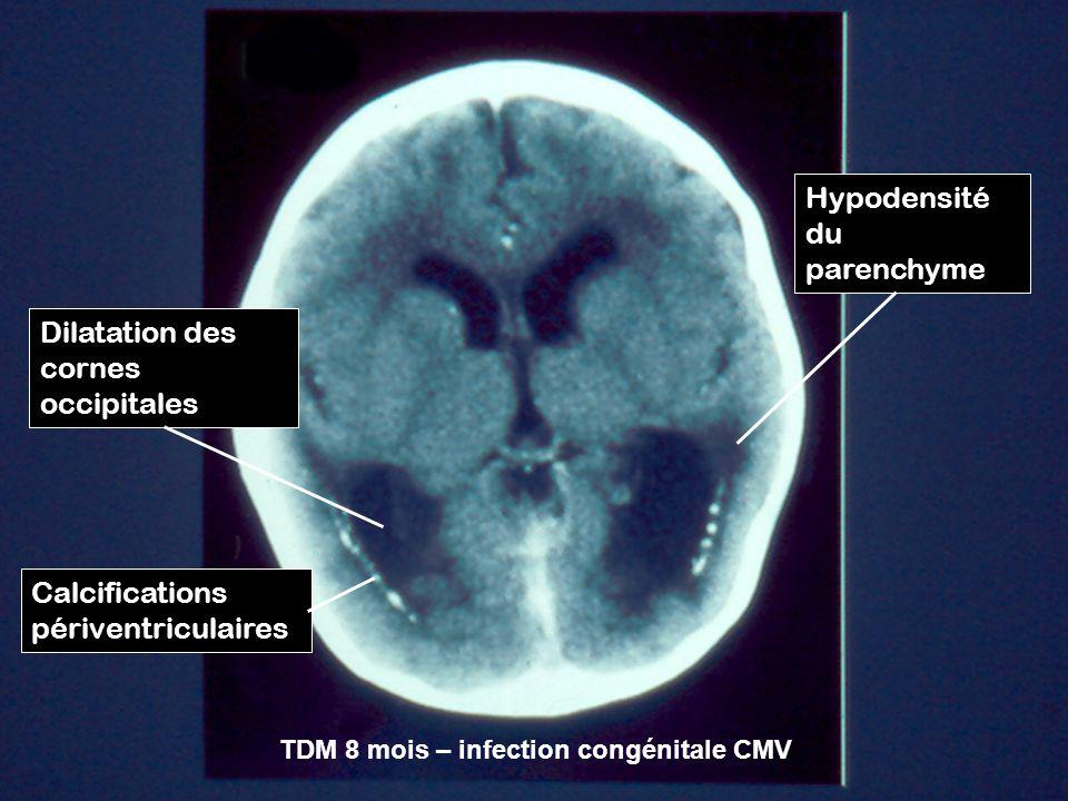 Hypodensité du parenchyme Dilatation des cornes occipitales Calcifications périventriculaires TDM 8 mois – infection congénitale CMV
