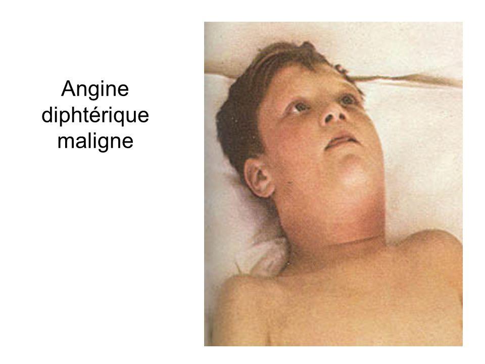 21 Angine diphtérique maligne