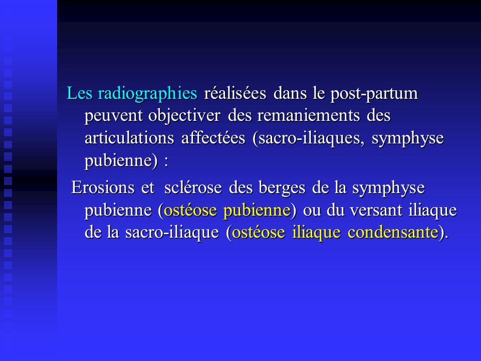 Les radiographies réalisées dans le post-partum peuvent objectiver des remaniements des articulations affectées (sacro-iliaques, symphyse pubienne) :