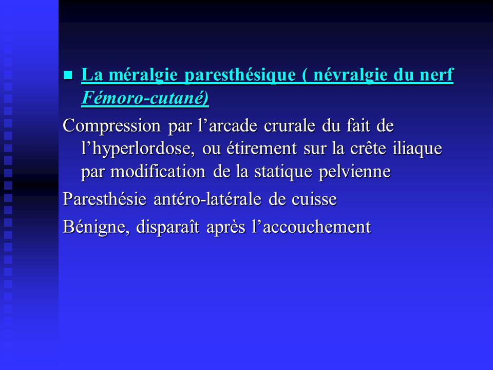 La méralgie paresthésique ( névralgie du nerf Fémoro-cutané) La méralgie paresthésique ( névralgie du nerf Fémoro-cutané) Compression par larcade crur