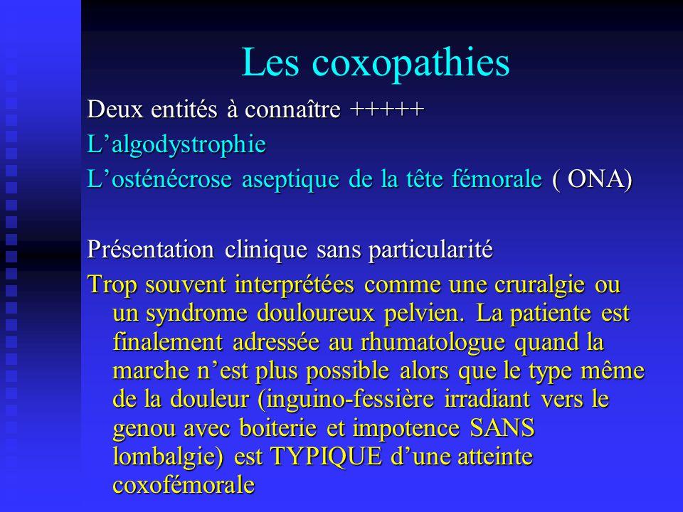 Les coxopathies Deux entités à connaître +++++ Lalgodystrophie Losténécrose aseptique de la tête fémorale ( ONA) Présentation clinique sans particular
