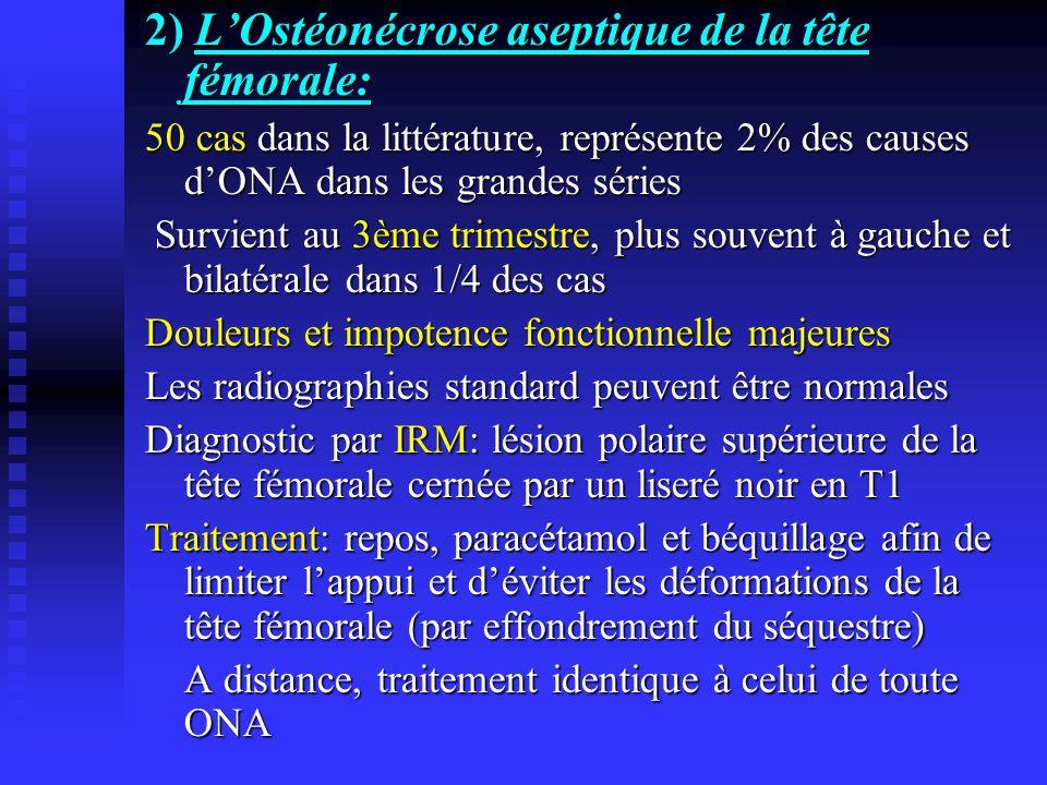 2) LOstéonécrose aseptique de la tête fémorale: 50 cas dans la littérature, représente 2% des causes dONA dans les grandes séries Survient au 3ème tri
