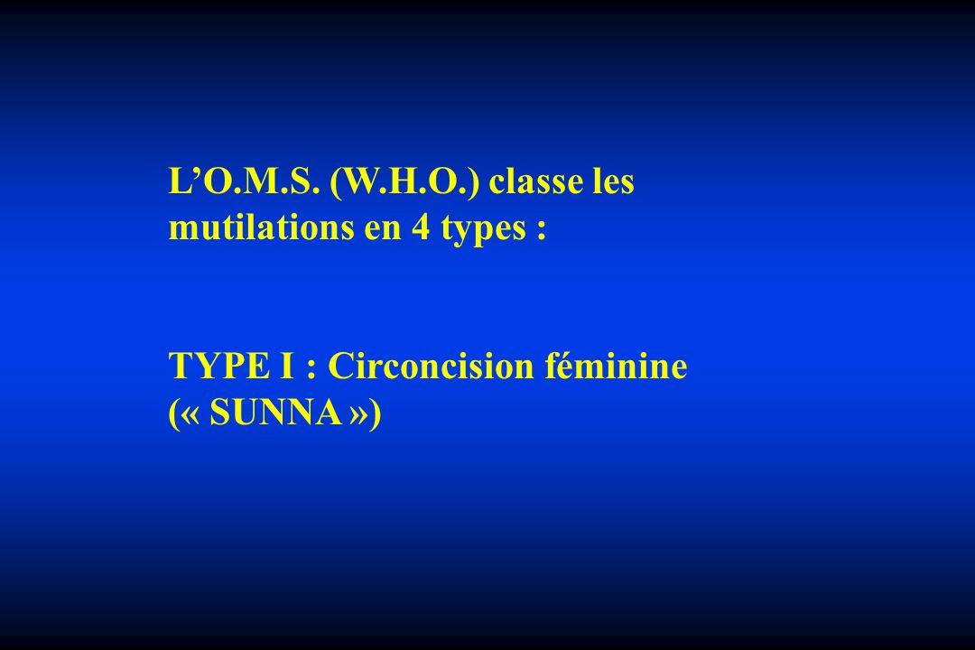 LO.M.S. (W.H.O.) classe les mutilations en 4 types : TYPE I : Circoncision féminine (« SUNNA »)