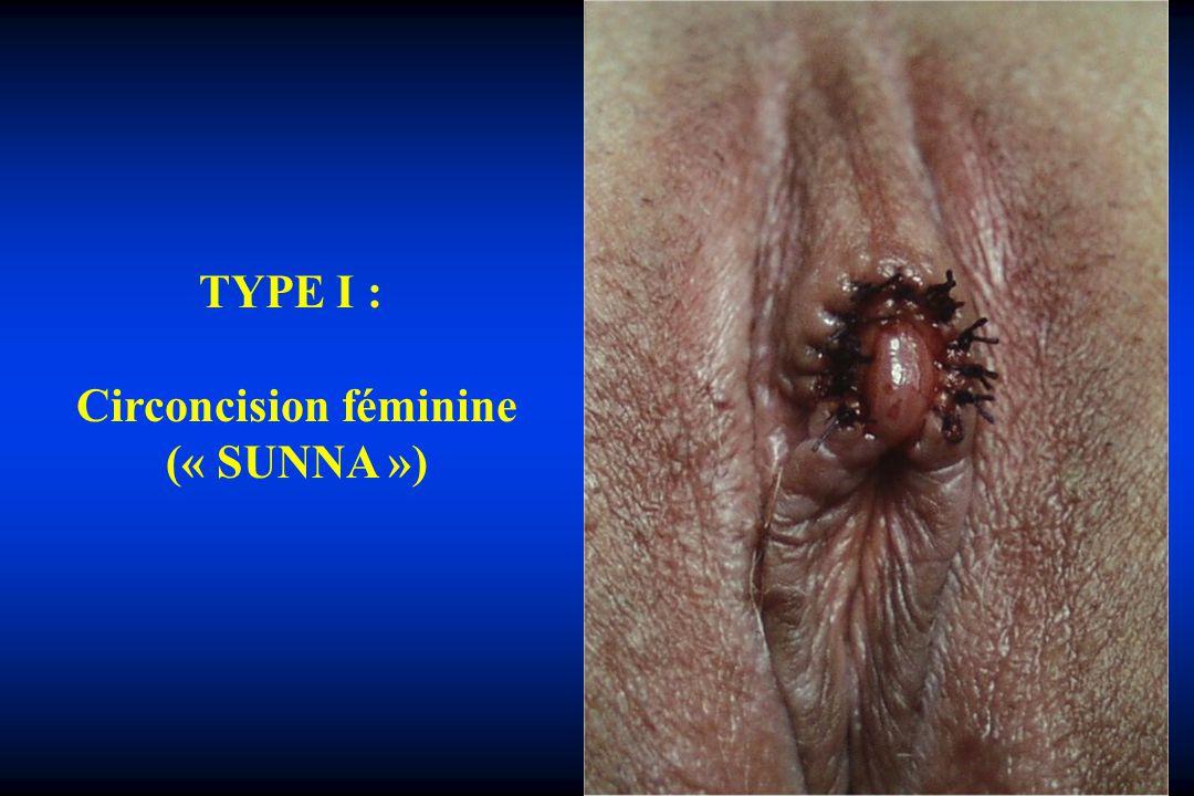 TYPE I : Circoncision féminine (« SUNNA »)