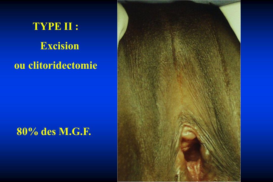 TYPE II : Excision ou clitoridectomie 80% des M.G.F.