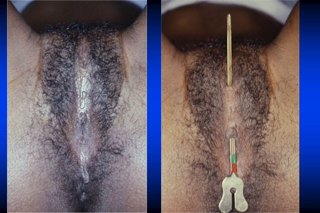 TYPE IV* scarification du clitoris et/ou des lèvres * cautérisation du clitoris * introduction de substances corrosives ou autres procédés de plantes dans le vagin * introcision ou épisiotomie coutumière