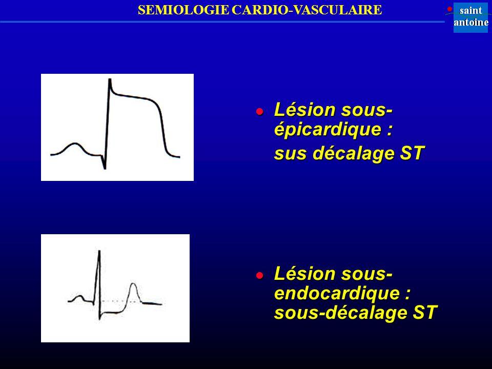 SEMIOLOGIE CARDIO-VASCULAIRE l Lésion sous- épicardique : sus décalage ST l Lésion sous- endocardique : sous-décalage ST