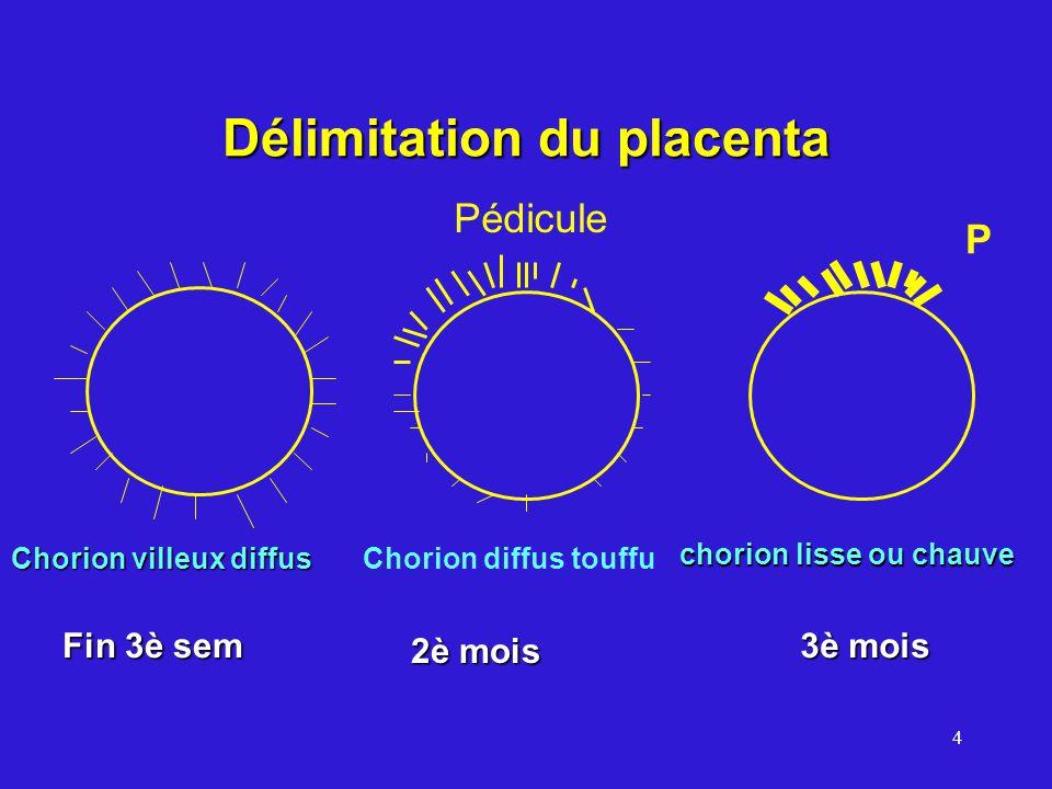 4 Délimitation du placenta Chorion villeux diffus Chorion diffus touffu chorion lisse ou chauve Fin 3è sem 2è mois Pédicule 3è mois P