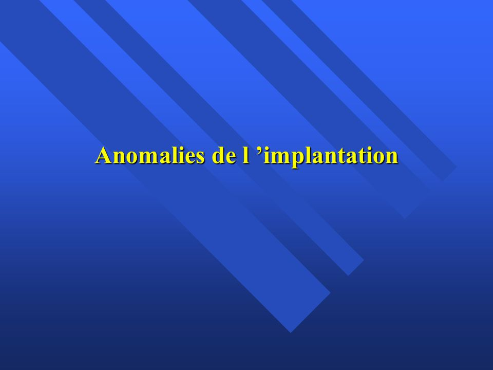 Anomalies de l implantation