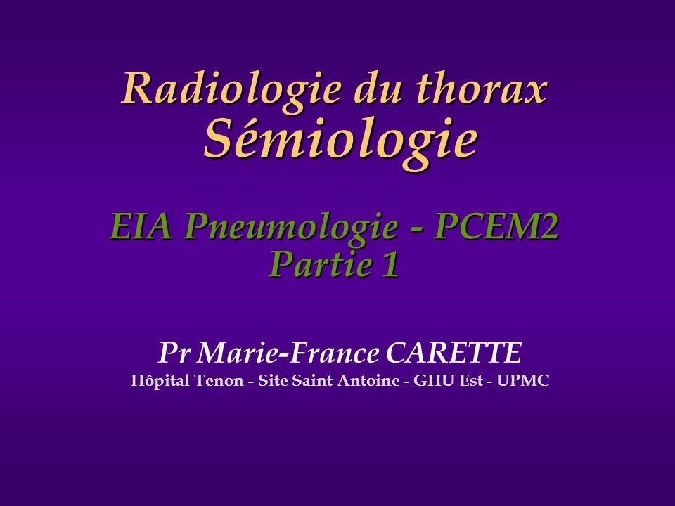 Pr Marie-France CARETTE Hôpital Tenon - Site Saint Antoine - GHU Est - UPMC Radiologie du thorax Sémiologie EIA Pneumologie - PCEM2 Partie 1