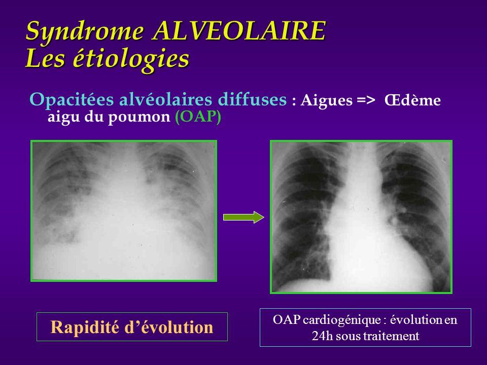 Syndrome ALVEOLAIRE Les étiologies Opacitées alvéolaires diffuses : Aigues => Œdème aigu du poumon (OAP) OAP cardiogénique : évolution en 24h sous tra