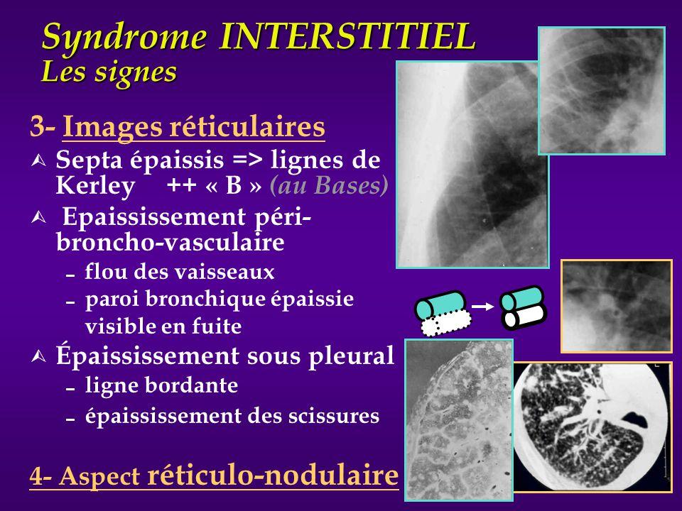 Syndrome INTERSTITIEL Les signes 3- Images réticulaires Ù Septa épaissis => lignes de Kerley ++ « B » (au Bases) Ù Epaississement péri- broncho-vascul