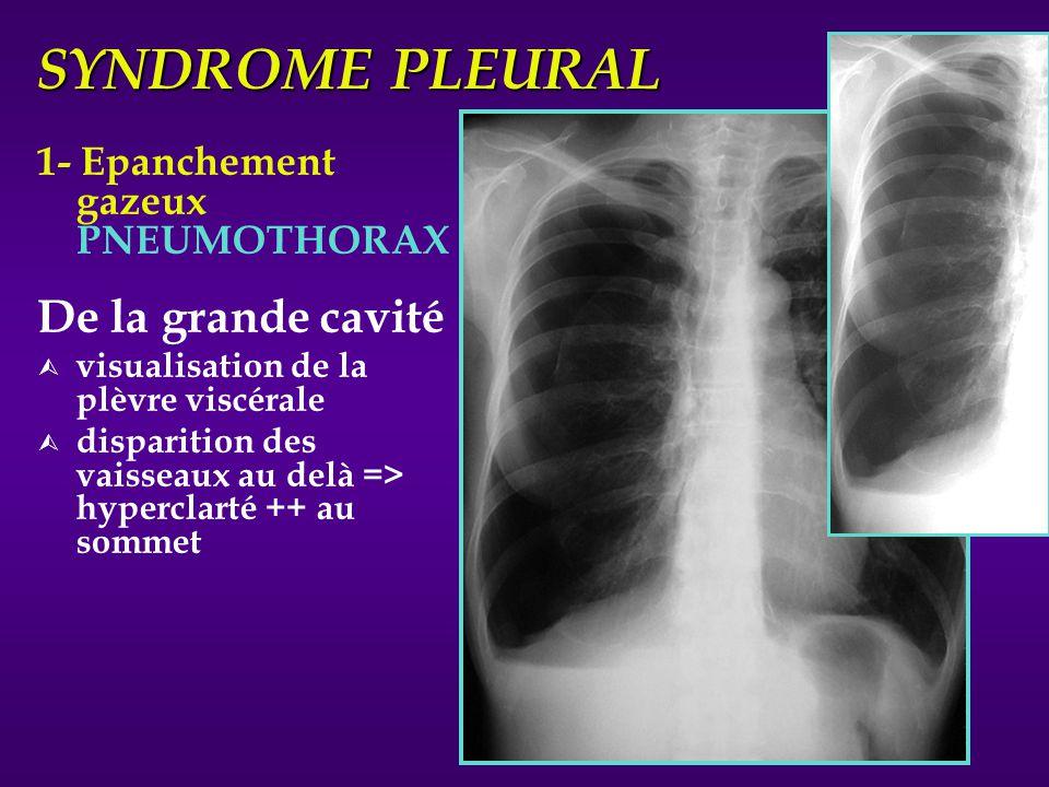 SYNDROME PLEURAL 1- Epanchement gazeux PNEUMOTHORAX De la grande cavité Ù visualisation de la plèvre viscérale Ù disparition des vaisseaux au delà =>