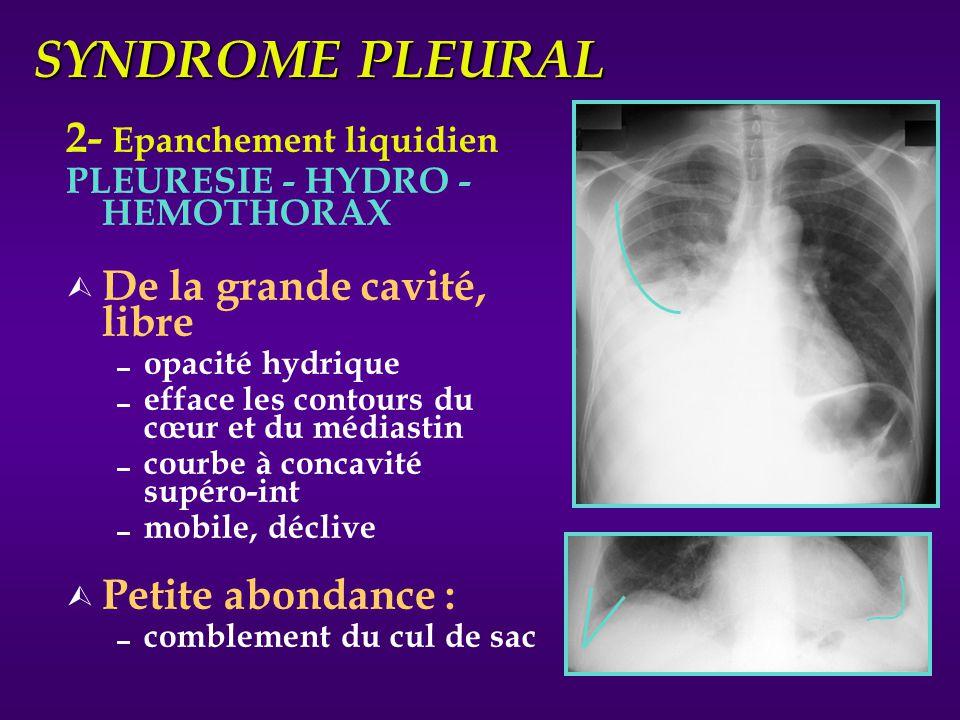 SYNDROME PLEURAL 2- Epanchement liquidien PLEURESIE - HYDRO - HEMOTHORAX Ù De la grande cavité, libre opacité hydrique efface les contours du cœur et