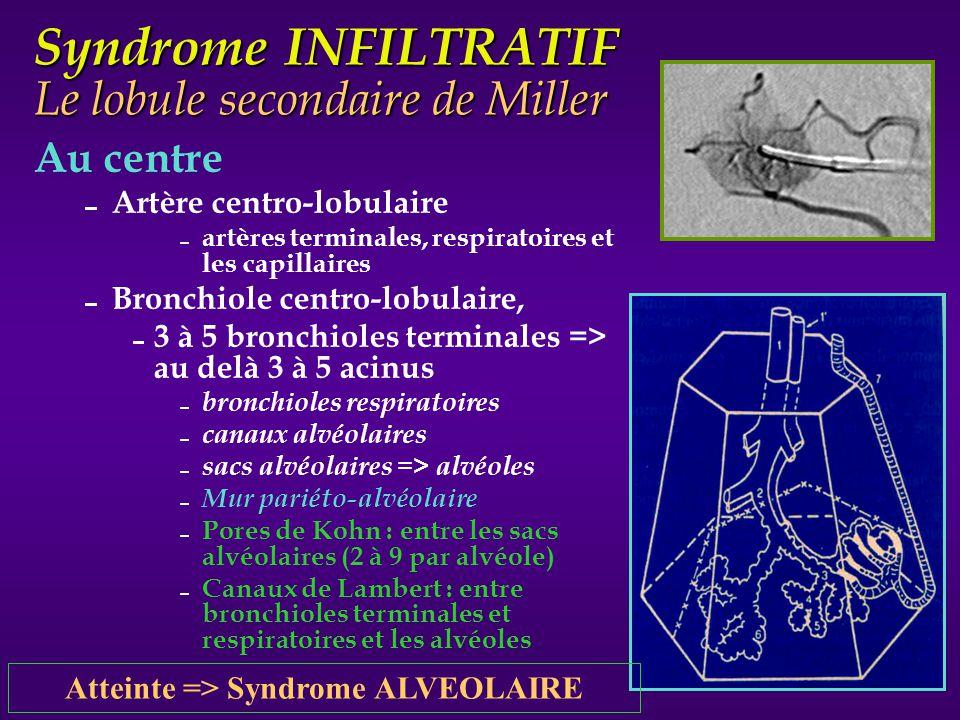 Syndrome INFILTRATIF Le lobule secondaire de Miller Périphérie Septa inter lobulaire Tissus conjonctif Veinules pulmonaires Lymphatiques Il à la forme dun cône à base pleurale et sommet tourné vers le hile.