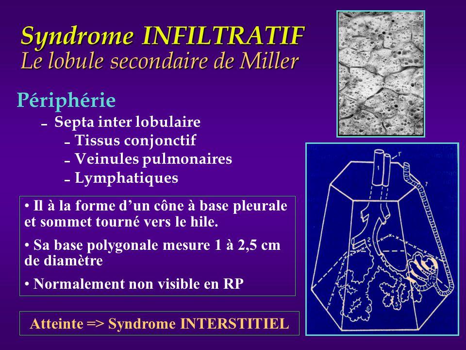 Syndrome INFILTRATIF Le lobule secondaire de Miller Périphérie Septa inter lobulaire Tissus conjonctif Veinules pulmonaires Lymphatiques Il à la forme