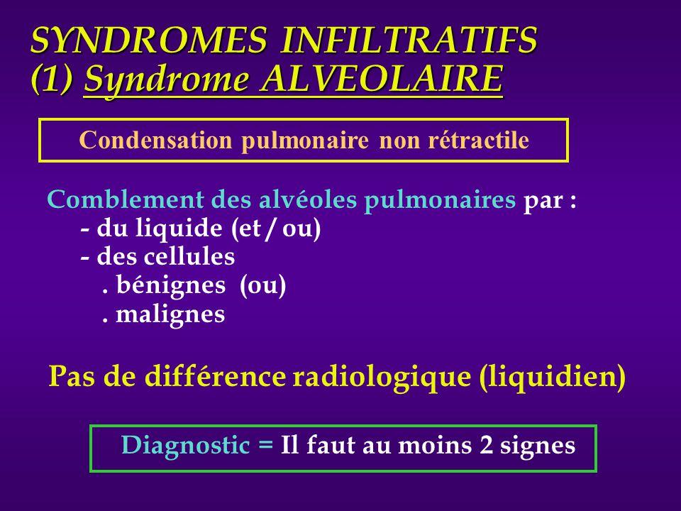 SYNDROMES INFILTRATIFS (1) Syndrome ALVEOLAIRE Comblement des alvéoles pulmonaires par : - du liquide (et / ou) - des cellules. bénignes (ou). maligne