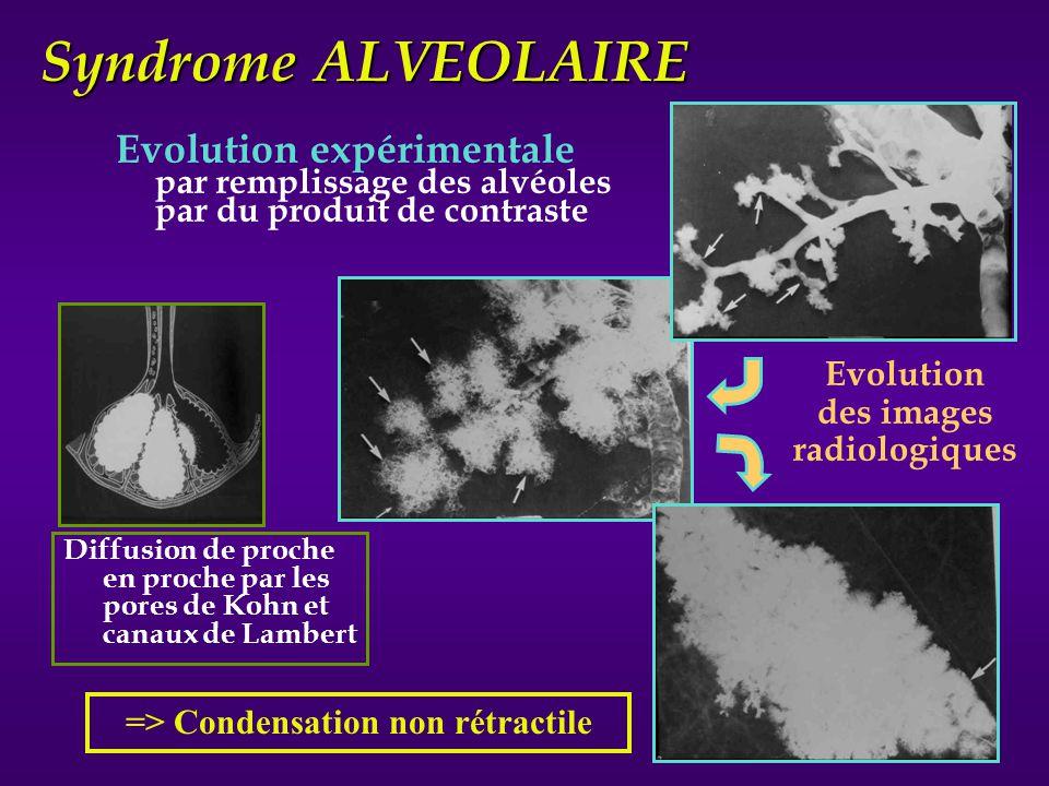 1- Nodules alvéolaires - ronds / ovalaires - 0.5 cm de Ø - bords flous - centrolobulaire (TDM) 2- Opacités hydriques - à bords flous 3- Confluentes 4- Bronchogramme aérien Syndrome ALVEOLAIRE les signes