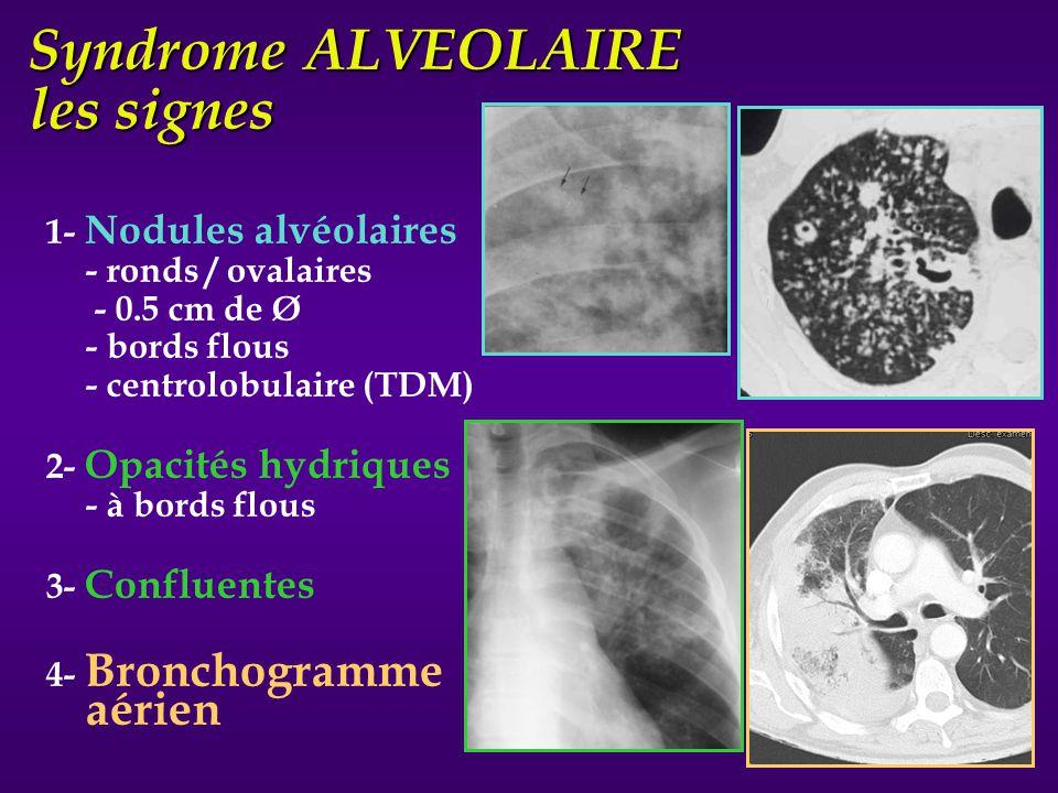 1- Nodules alvéolaires - ronds / ovalaires - 0.5 cm de Ø - bords flous - centrolobulaire (TDM) 2- Opacités hydriques - à bords flous 3- Confluentes 4-