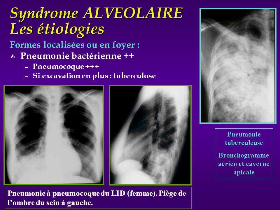 Syndrome ALVEOLAIRE Les étiologies Formes localisées ou en foyer : Ù Pneumonie bactérienne ++ Pneumocoque +++ Si excavation en plus : tuberculose Pneu