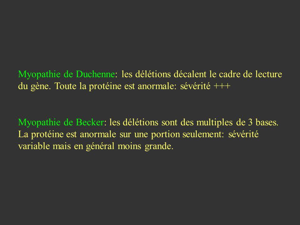 Myopathie de Duchenne: les délétions décalent le cadre de lecture du gène. Toute la protéine est anormale: sévérité +++ Myopathie de Becker: les délét