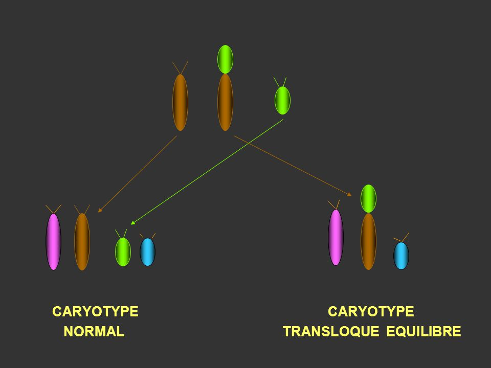 CARYOTYPE CARYOTYPE NORMAL TRANSLOQUE EQUILIBRE