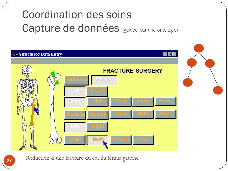 Coordination des soins Capture de données (guidée par une ontologie) FRACTURE SURGERY Structured Data Entry File Edit Help TibiaFibulaAnkleMore...Radius UlnaWristMore...