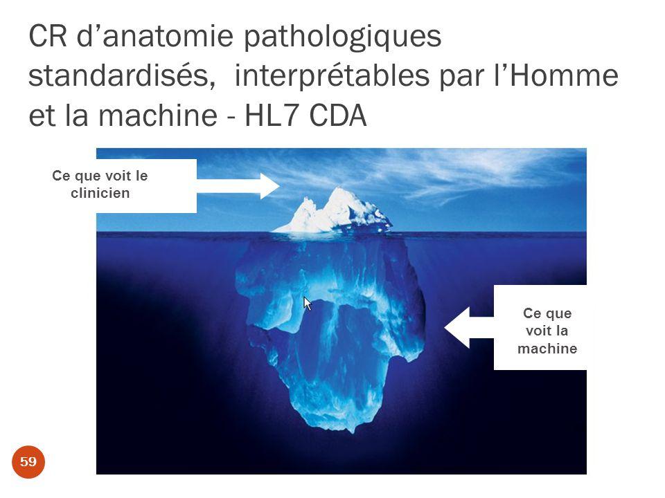 CR danatomie pathologiques standardisés, interprétables par lHomme et la machine - HL7 CDA Ce que voit la machine Ce que voit le clinicien 59