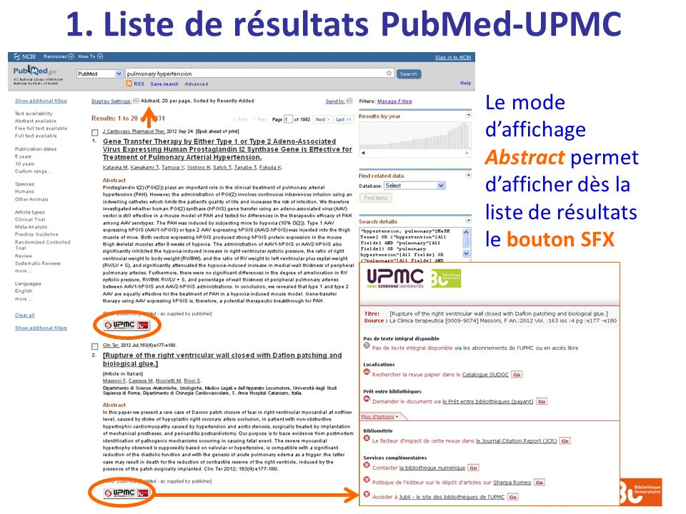 1. Liste de résultats PubMed-UPMC Le mode daffichage Abstract permet dafficher dès la liste de résultats le bouton SFX