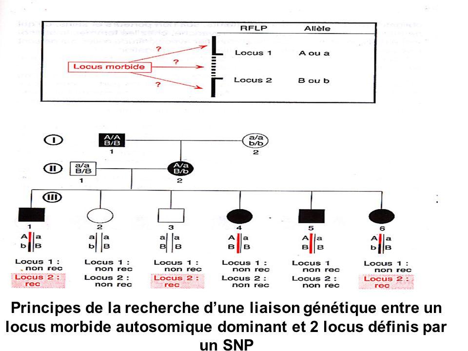 Principes de la recherche dune liaison génétique entre un locus morbide autosomique dominant et 2 locus définis par un SNP