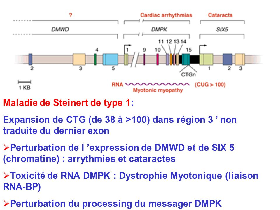 Maladie de Steinert de type 1: Expansion de CTG (de 38 à >100) dans région 3 non traduite du dernier exon Perturbation de l expression de DMWD et de SIX 5 (chromatine) : arrythmies et cataractes Toxicité de RNA DMPK : Dystrophie Myotonique (liaison RNA-BP) Perturbation du processing du messager DMPK