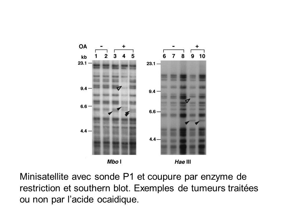 Minisatellite avec sonde P1 et coupure par enzyme de restriction et southern blot.
