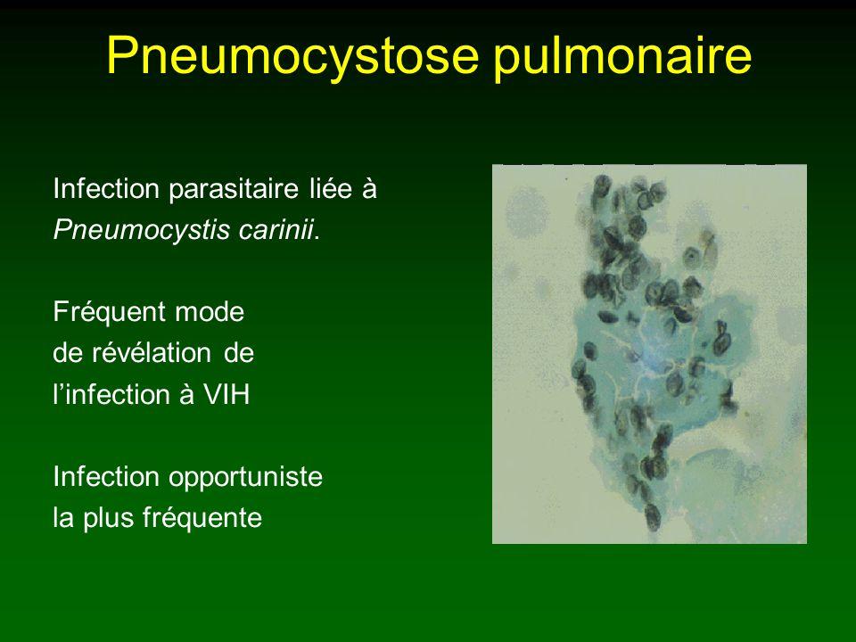 Pneumocystose pulmonaire Symptômes: Toux sèche accompagnant une dyspnée croissante Fièvre Séropositivité connue (ou non) sans prophylaxie.