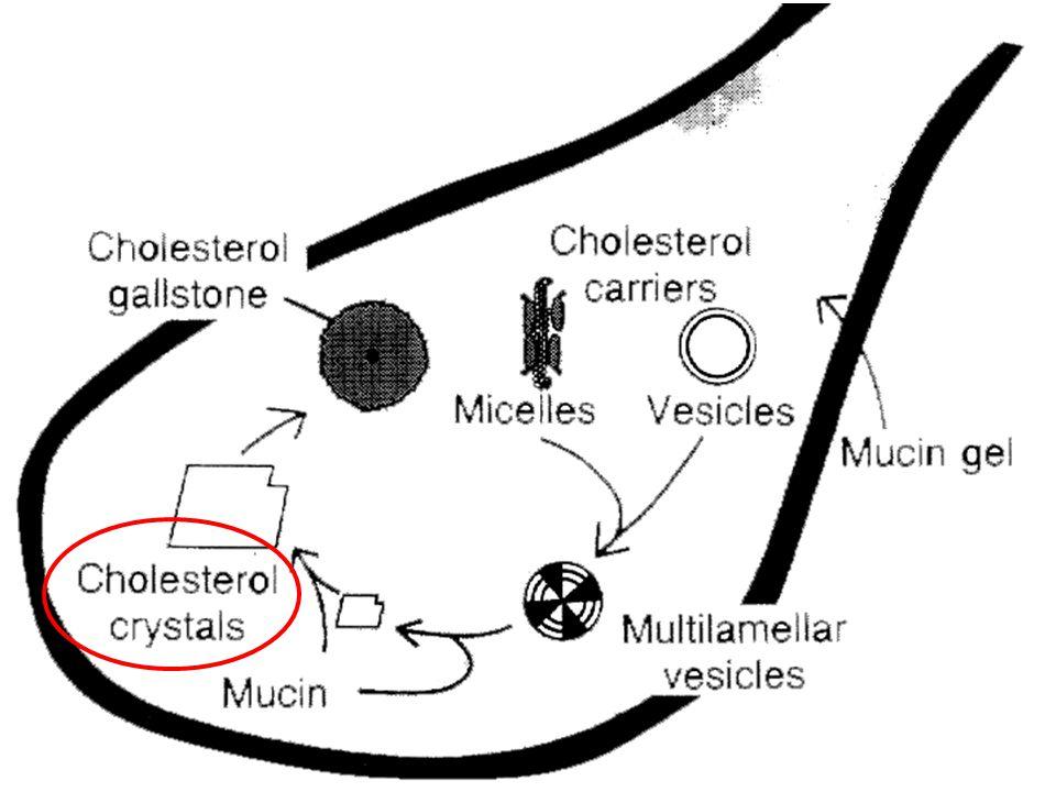 Formation des cristaux de cholestérol